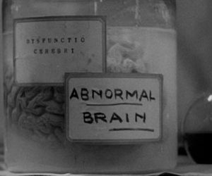 brain, black and white, and abnormal image