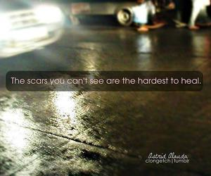 scars, text, and hard image