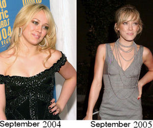 anorexia, before after, and blonde image
