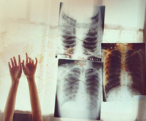 hands, bones, and x-ray image