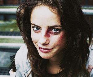 bruises and effy stonem image