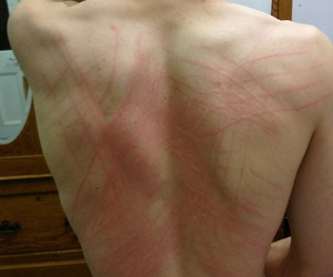 back, boys, and scratches image
