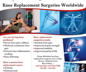 health, health tourism, and knee replacement surgery image