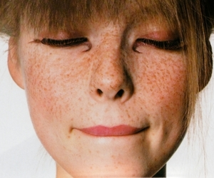 girl, freckles, and lips image