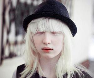 albino, girl, and hat image