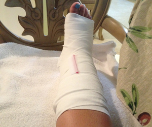 broke, cast, and foot image