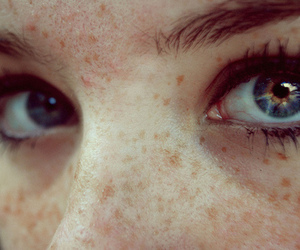 blue, freckles, and eyes image