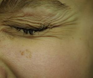 emotion, eyes, and pain image