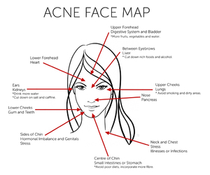 acne, beauty, and face image