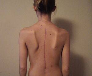 scar, spinal fusion, and postop image
