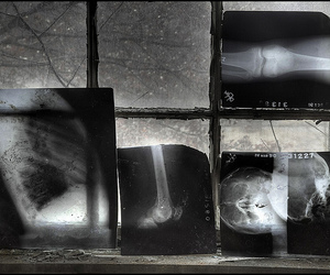 abandoned, old, and x-ray image