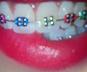 colors, smile, and brackets image