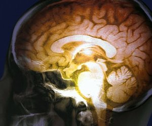 brain, science, and tumblr image