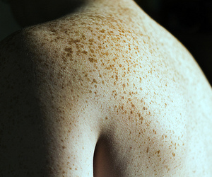 arm, freckles, and ginger image