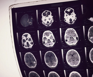 brain and scan image
