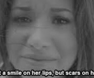 demi lovato, scars, and smile image