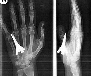hand, paris, and x-ray image