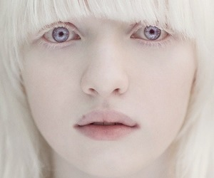 girl, white, and albino image