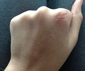 hand cuts scars image